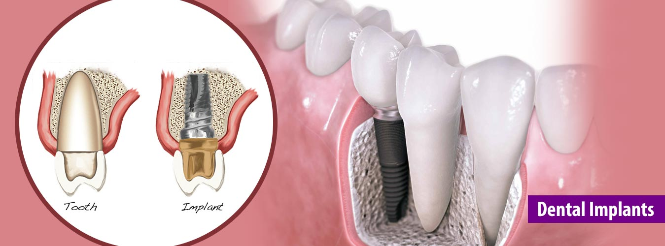 Dental Implant Treatment In Pune